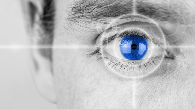 Tomografia a Coerenza Ottica – OCT